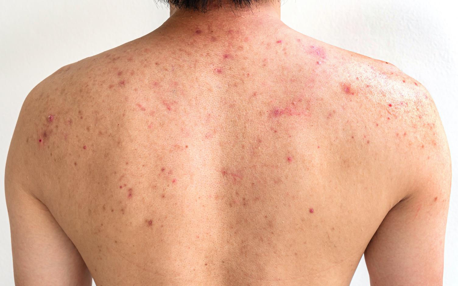首 ニキビ 原因 首ニキビ しこりニキビの原因と治し方 PAIR(ペア)ピュア肌ラボ