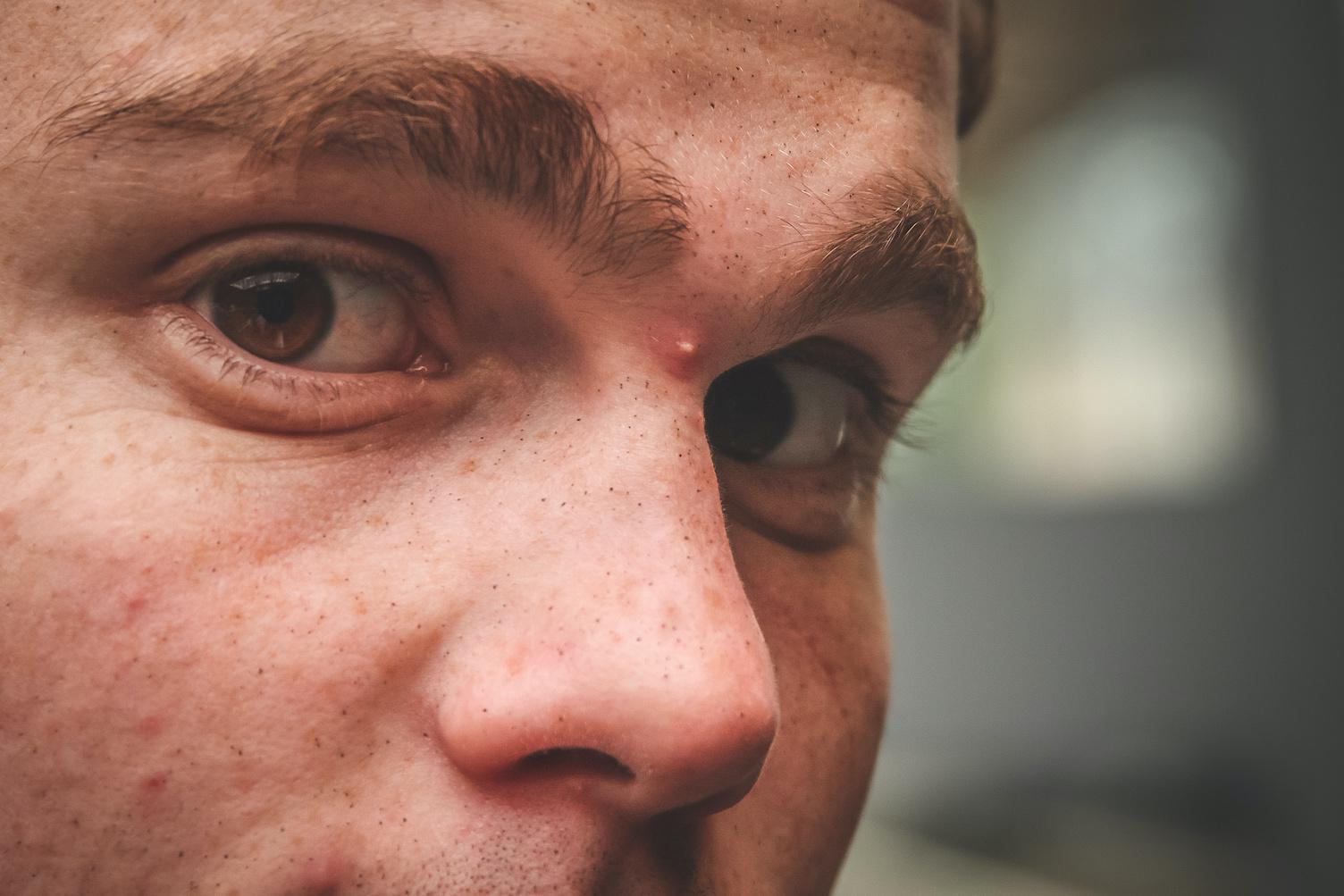 ジンクス 眉毛 かゆい