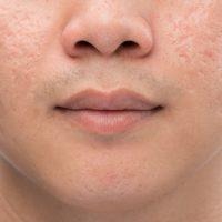 男のクレーター肌は治療が出来るのか?日々の予防と対策方法をご紹介
